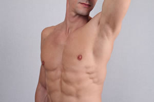 Man's chest laser hair removal