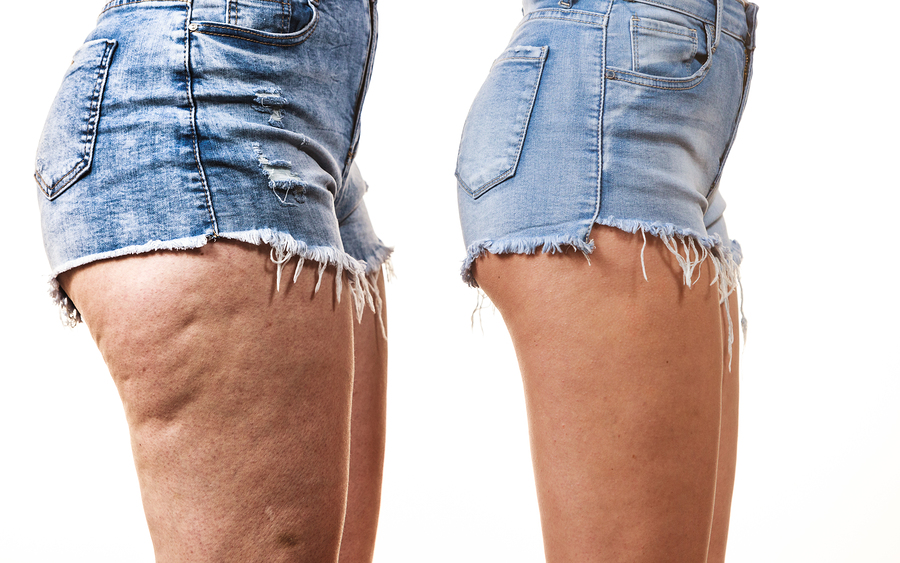 Comparison of thighs with and without cellulite