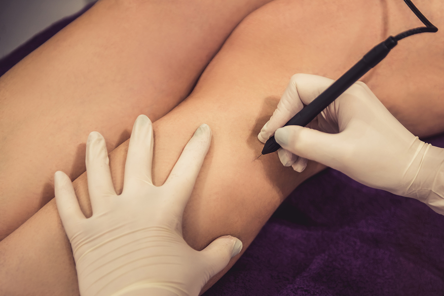 Needle Electrolysis being performed on a woman's legs.