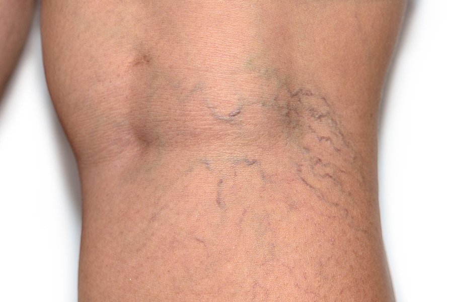 15% Off Laser Spider Vein Treatments for the Month of October 2020, Close up of spider veins.